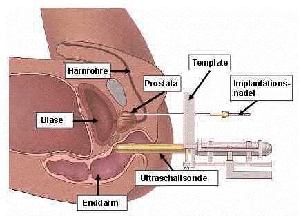 brachytherapieschnittbild